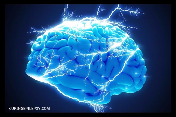 The Brain and Epilepsy